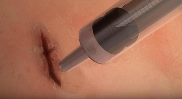 glue-surgical-Smartphonegreece (2).jpg