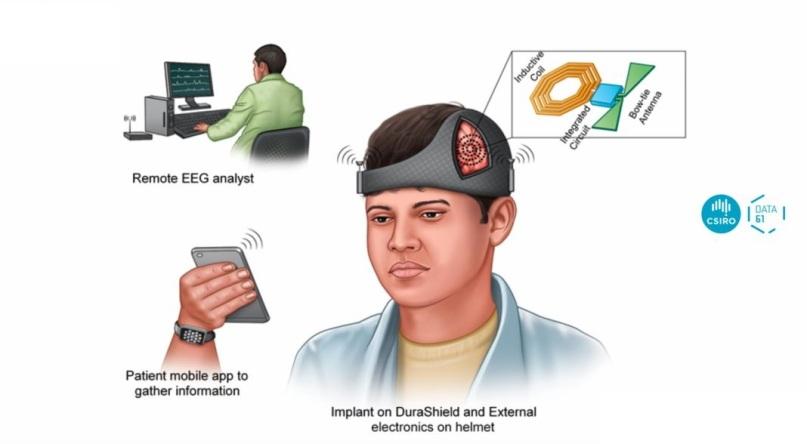iEEG Monitoring-Smartphonegreece